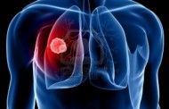 Preocupa el cáncer de pulmón relacionado con la industria automotriz