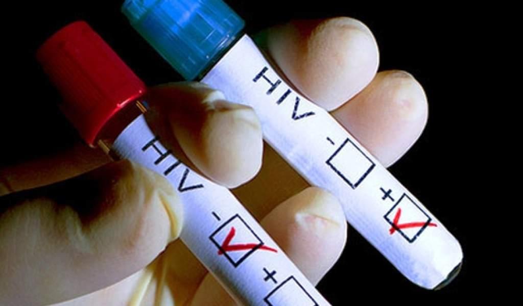 Reporta Aguascalientes más de un millar de casos de VIH