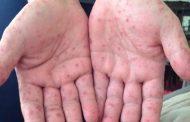 Aguascalientes no tiene epidemia del Coxsackie