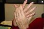 Registra la entidad de 2 a 3 casos nuevos de artritis diariamente