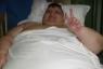Practican exitosa cirugía a hidrocálido considerado el más obeso del mundo